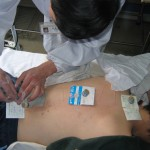 Needle-top moxibustion being performed in a Chinese medicine clinic in Chengdu