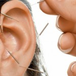 Ear acupuncture in Boulder, CO