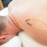 E-stim (electro) acupuncture in Boulder, CO